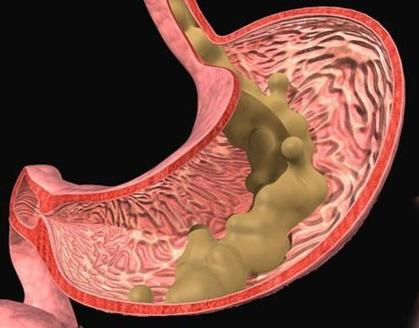 经常胃酸怎么办?了解胃酸过多是什么原因乃第一步